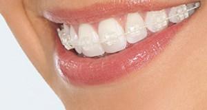 Chỉnh nha-niềng răng bằng mắc cài sứ thẩm mỹ