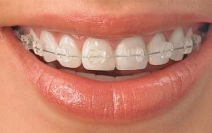 orthodontics-nha-khoa-aquanice dc