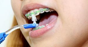 Vệ sinh răng miệng khi đang chỉnh nha, niềng răng