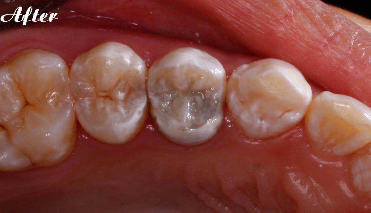 nha-khoa-implant-chinh-nha-rang-su-tham-my-dr-phammcuong-03