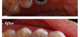 Điều trị sâu răng: Trám răng kĩ thuật cao và thẩm mỹ