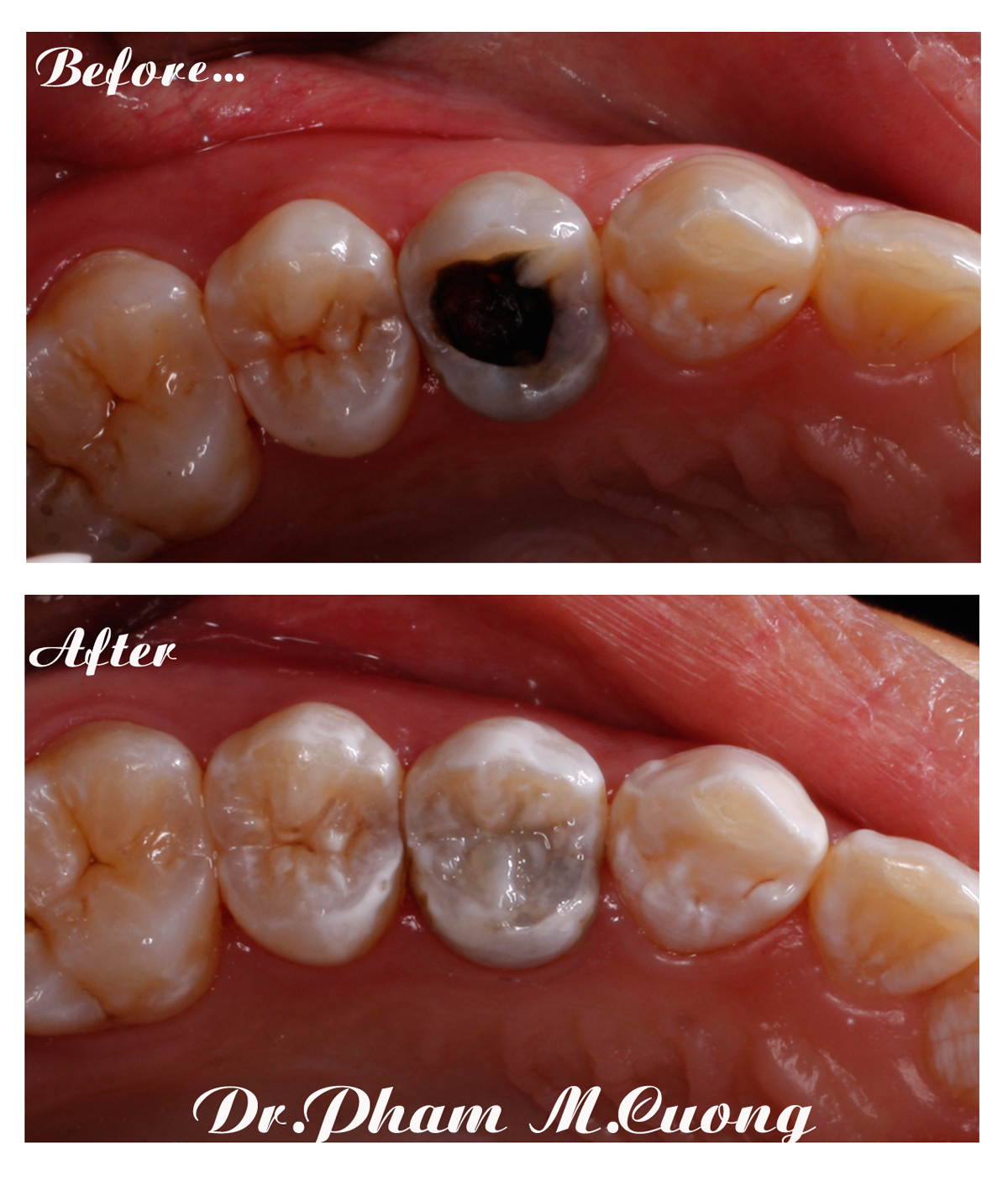 nha-khoa-implant-chinh-nha-rang-su-tham-my-dr-phammcuong