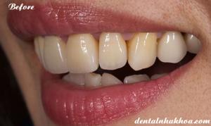 veneer-su-dsd-implant-nha-khoa-tham-my-04