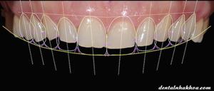 veneer-su-dsd-implant-nha-khoa-tham-my