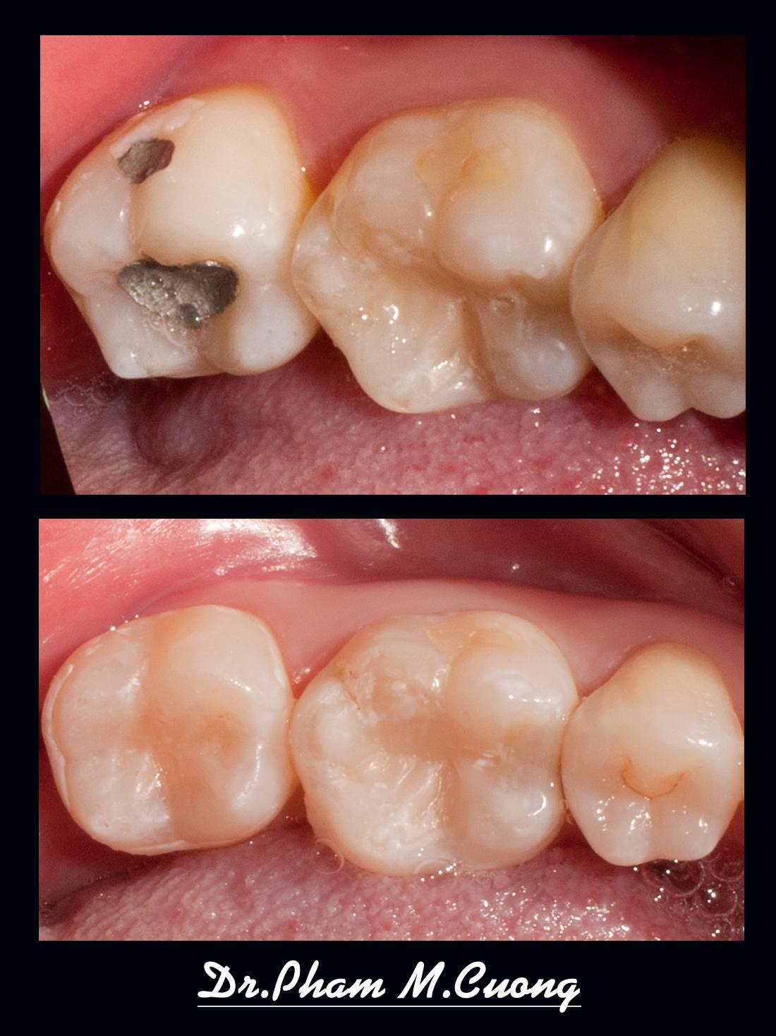 implant-rang-su-chinh-nha-nha-khoa-dental-drcuong-tram-rang-nho-rang-khong-dau-artdent-02